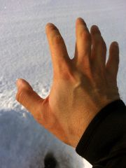Envision Ice Guard след на руке от манжеты